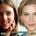 Scarlett Johansson Plastic Surgery Boob Job Before After Pictures