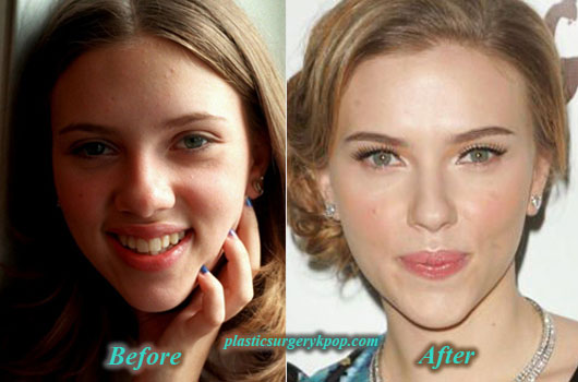 ScarlettJohanssonPlasticSurgery Scarlett Johansson Plastic Surgery Boob Job Before After Pictures