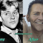 Scott Thorson Plastic Surgery Before and After Pictures