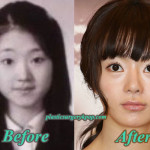 Seo Woo Plastic Surgery Before After Pictures