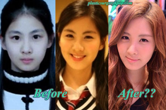 SeohyunPlasticSurgery Seohyun Plastic Surgery Before and After, SNSD Rumor or Fact?