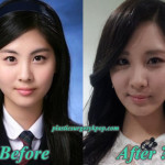 SeohyunSNSDPlasticSurgery 150x150 Yoona Plastic Surgery SNSD Plastic Surgery Before After Pictures