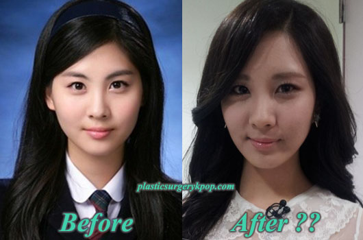 seohyun plastic surgery before and after snsd rumor or fact