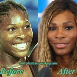 Serena Williams Plastic Surgery Before and After Picture