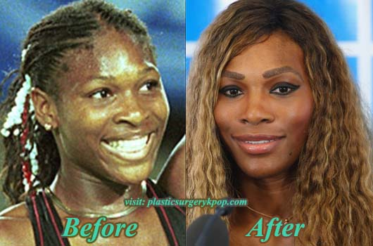 SerenaWilliamPlasticSurgery Serena Williams Plastic Surgery Before and After Picture