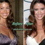 Shannon Elizabeth Plastic Surgery Before After Picture