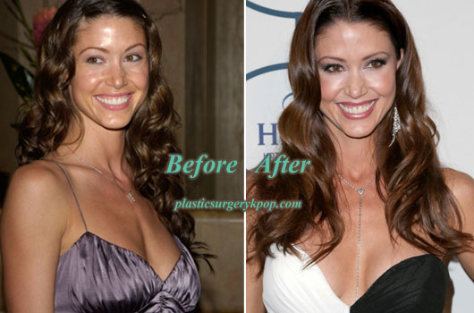 ShannonElizabethPlasticSurgery Shannon Elizabeth Plastic Surgery Before After Picture