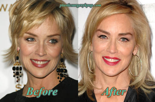 SharonStoneBotox Sharon Stone Plastic Surgery Before and After Pictures