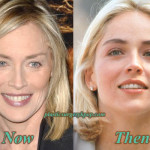 Sharon Stone Plastic Surgery Before and After Pictures