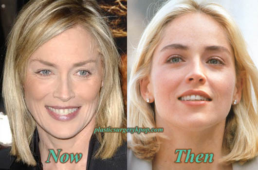 SharonStonePlasticSurgery Sharon Stone Plastic Surgery Before and After Pictures