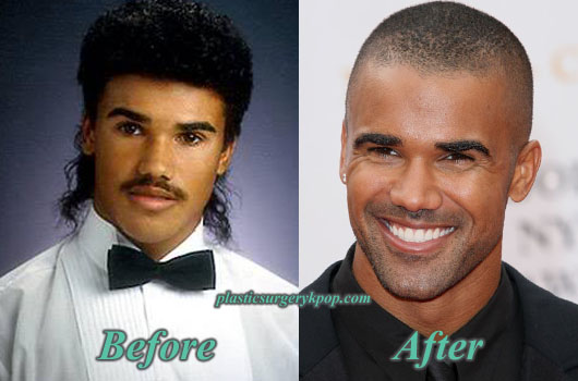 ShemarMoorePlasticSurgery Shemar Moore Plastic Surgery Before and After Pictures