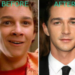 Shia LaBeouf Plastic Surgery Before and After