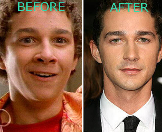 Shia LaBeouf Plastic Surgery Shia LaBeouf Plastic Surgery Before and After