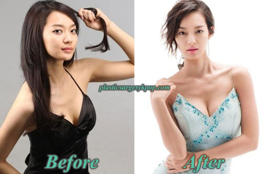 ShinMinAhBoobsJob Shin Min Ah Plastic Surgery Before After Pictures