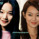 Shin Min Ah Plastic Surgery Before After Pictures
