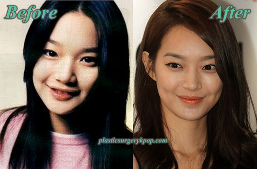 ShinMinAhPlasticSurgery Shin Min Ah Plastic Surgery Before After Pictures