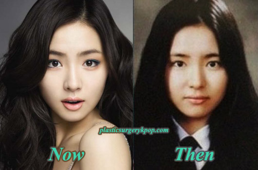 ShinSeKyungBeforeAfter Shin Se Kyung Plastic Surgery Before and After Rumor with Pictures