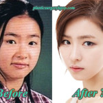 Shin Se Kyung Plastic Surgery Before and After Rumor with Pictures