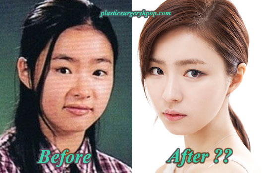 ShinSeKyungPlasticSurgery Shin Se Kyung Plastic Surgery Before and After Rumor with Pictures
