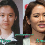Son Ye Jin Plastic Surgery Before and After Pictures