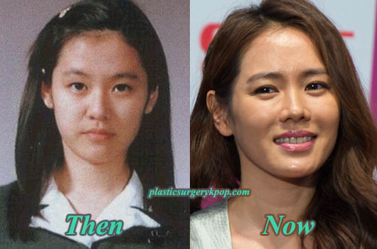 SonYeJinPlasticSurgery Son Ye Jin Plastic Surgery Before and After Pictures