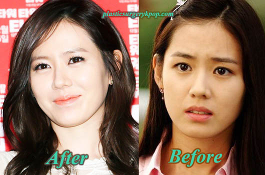 SonYeJinPlasticSurgeryBeforeAfter Son Ye Jin Plastic Surgery Before and After Pictures