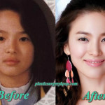Song Hye Kyo Plastic Surgery Before and After Pictures