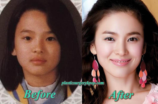 SongHyeKyoPlasticSurgery Song Hye Kyo Plastic Surgery Before and After Pictures