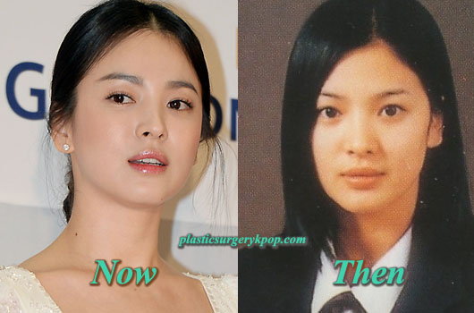 SongHyeKyoPlasticSurgeryBeforeandAfter Song Hye Kyo Plastic Surgery Before and After Pictures