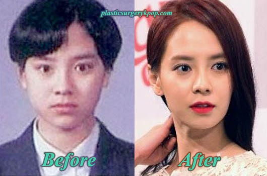 SongJiHyoPlasticSurgery Song Ji Hyo Plastic Surgery Rumor Before and After
