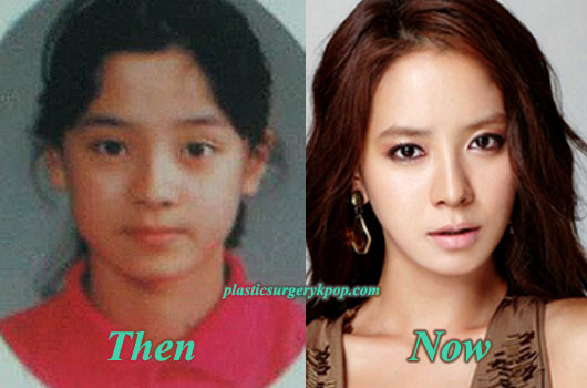 SongJiHyoPlasticSurgeryPicture Song Ji Hyo Plastic Surgery Rumor Before and After