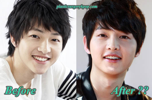 SongJoongKiBeforeandAfter Song Joong Ki Plastic Surgery Pictures Before and After Rumor