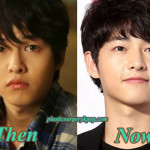 Song Joong Ki Plastic Surgery Pictures Before and After Rumor