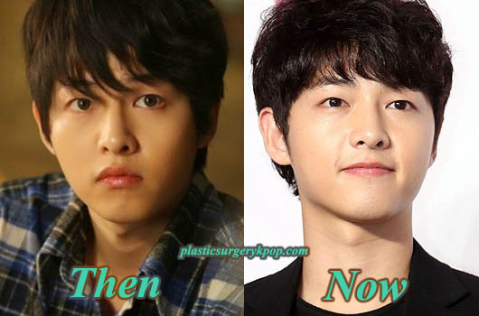 SongJoongKiPlasticSurgery Song Joong Ki Plastic Surgery Pictures Before and After Rumor