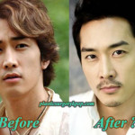 Song Seung Heon Plastic Surgery Rumor Before and After Picture