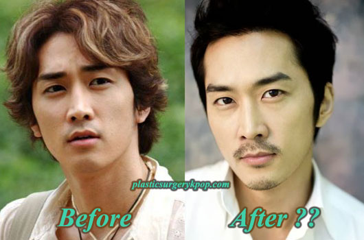 SongSeungHeonPlasticSurgery Song Seung Heon Plastic Surgery Rumor Before and After Picture