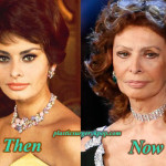 Sophia Loren Plastic Surgery Before and After Pictures