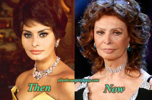 SophiaLorenPlasticSurgery Sophia Loren Plastic Surgery Before and After Pictures