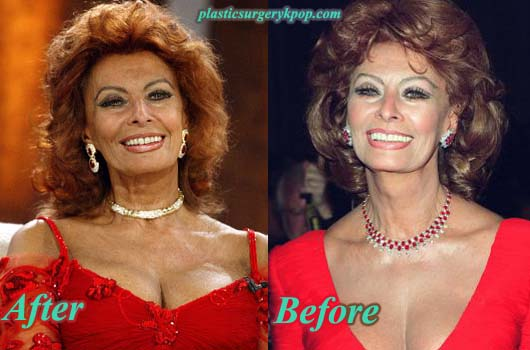 SophiaLorenPlasticSurgeryPicture Sophia Loren Plastic Surgery Before and After Pictures