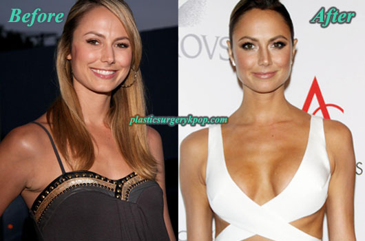 StacyKeiblerBreastAugmentation Stacy Keibler Plastic Surgery Before and After Pictures