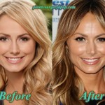 Stacy Keibler Plastic Surgery Before and After Pictures