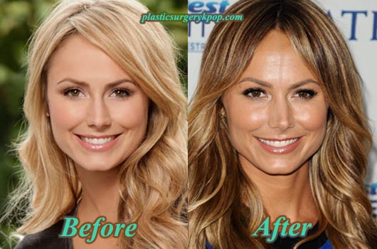 StacyKeiblerPlasticSurgery Stacy Keibler Plastic Surgery Before and After Pictures
