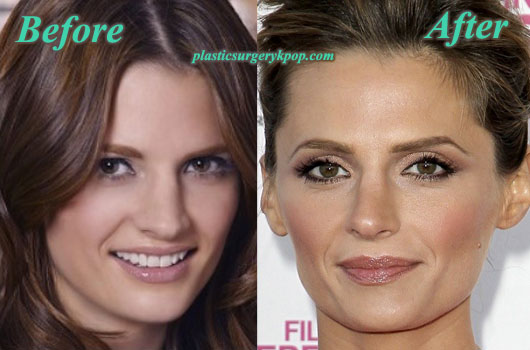 StanaKaticNoseJob Stana Katic Nose Job Plastic Surgery Before and After Pictures