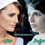 Stana Katic Nose Job Plastic Surgery Before and After Pictures