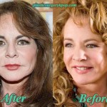 Stockard Channing Plastic Surgery Before After Pictures