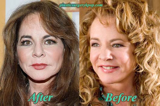 StockardChanningPlasticSurgery Stockard Channing Plastic Surgery Before After Pictures