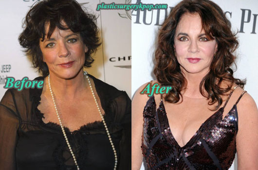 StockardChanningPlasticSurgeryPicture Stockard Channing Plastic Surgery Before After Pictures