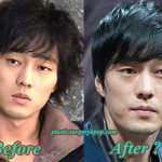 So Ji Sub Plastic Surgery Before After