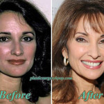 Susan Lucci Plastic Surgery Before and After Pictures
