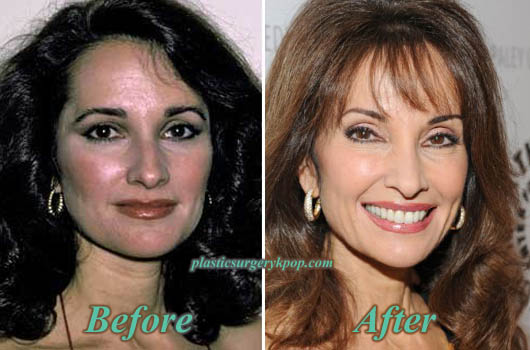 SusanLucciPlasticSurgery Susan Lucci Plastic Surgery Before and After Pictures